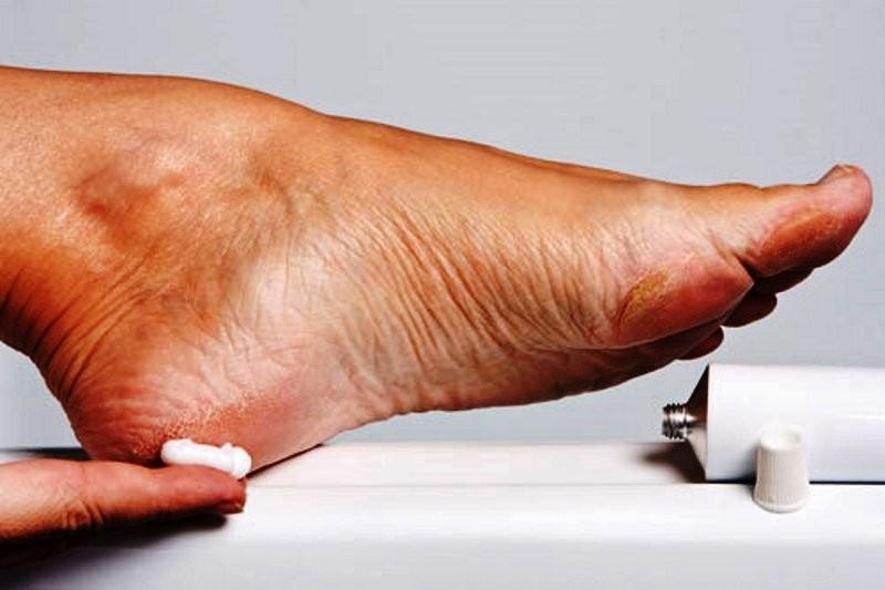درمان مشکلات پا ( بوی بد پا و شکل بد ) (3)